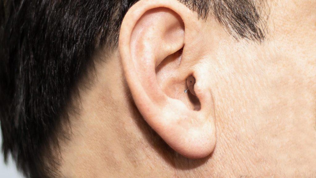 מכשיר שמיעה תוך אוזני זעי קטן